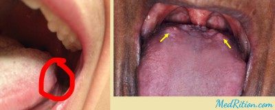 Bumps On Back Of Tongue Medrition