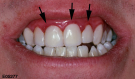 swollen-gums-causes-symptoms-and-treatment