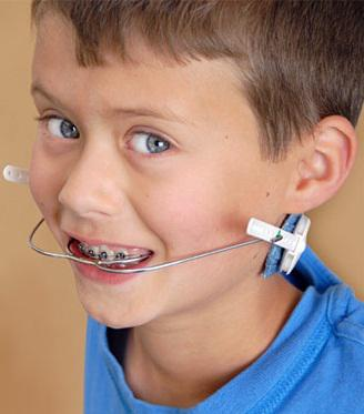 orthodontic-headgear-braces